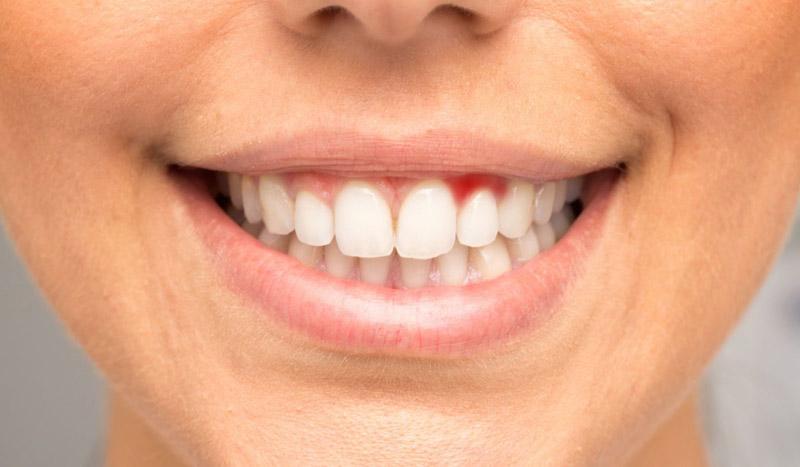 gengivite periodontite